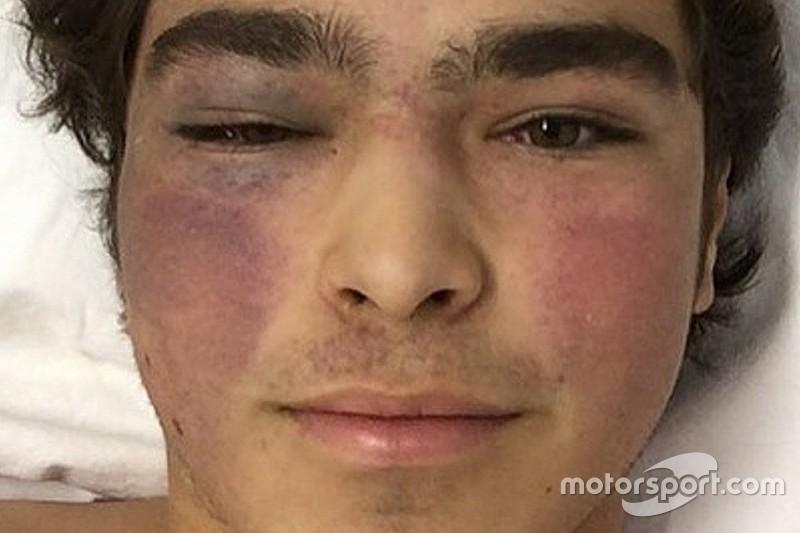 Pedro Piquet segue internado em Goiânia após forte acidente