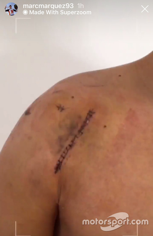 La cicatrice sulla spalla operata di Marc Márquez