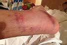 Stoner posta su Twitter le foto della sua caviglia