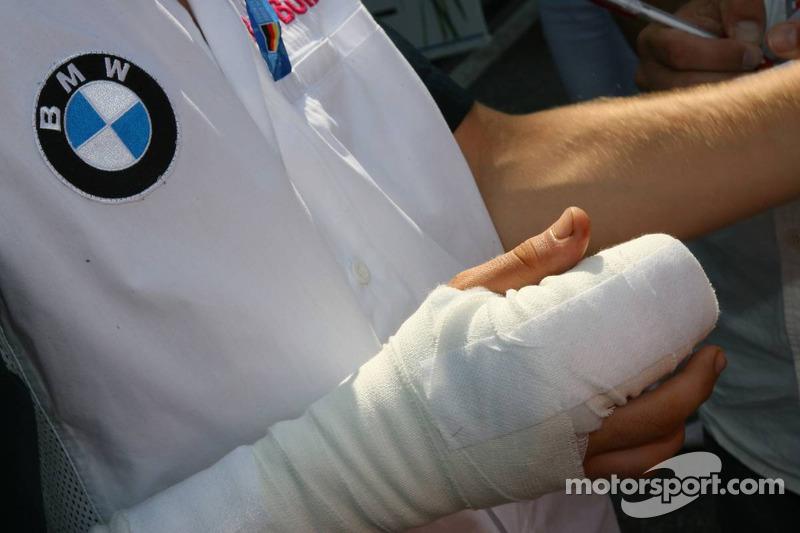Sebastian Vettel después de que le fue colocado su dedo a base de suturas, después de perderlo durante un accidente en Spa durante una carrera en la Word Series by Renault